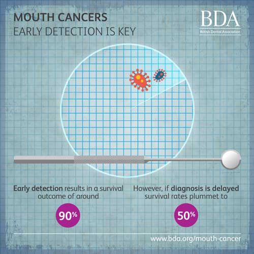 Mouth Cancer early detection