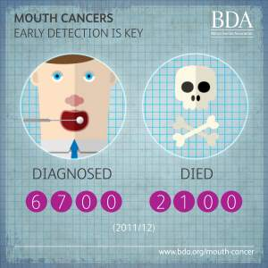mouth cancer infographic early diagnosis